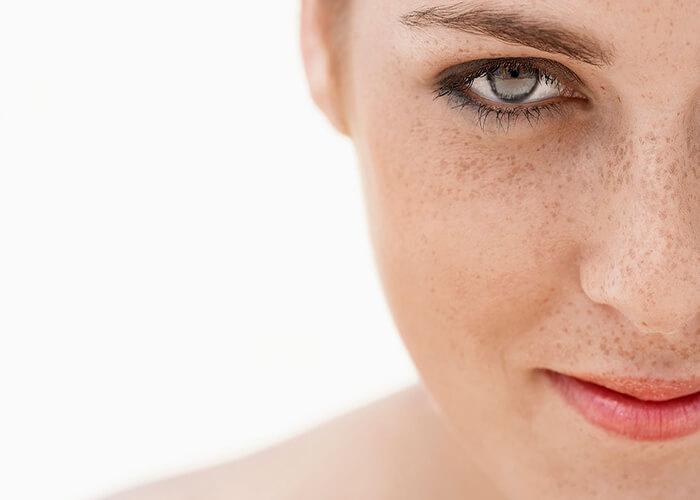 5 Bí quyết giúp ngăn ngừa và loại bỏ đốm đồi mồi hiệu quả